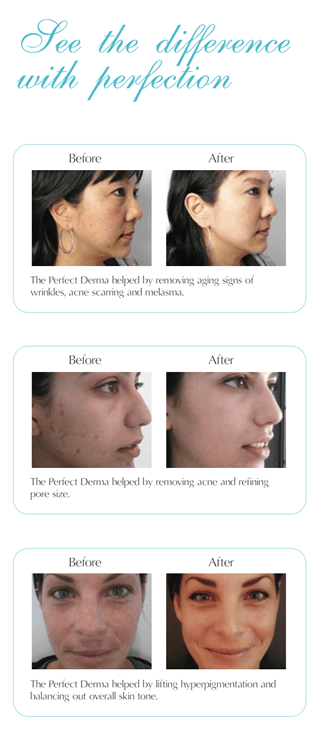 perfect_derma_beforeafter
